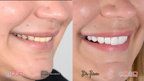 Cosmetic Dentist Toronto - Smile Design
