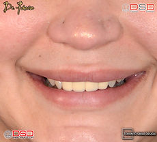 Cosmetic Dentistry Toronto - Porcelain Crowns - Smile Transformation.jpeg