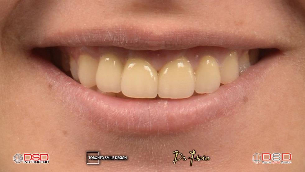 dental implant procedure - toronto dental implants - dental implants before and after.jpeg