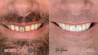 toronto cosmetic dentist - porcelain crowns toronto - gum contouring procedure