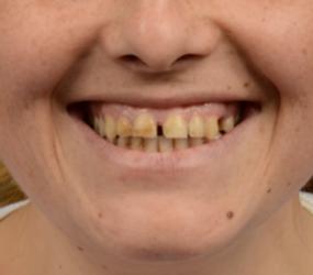 boşluklu dişlere digital smile design