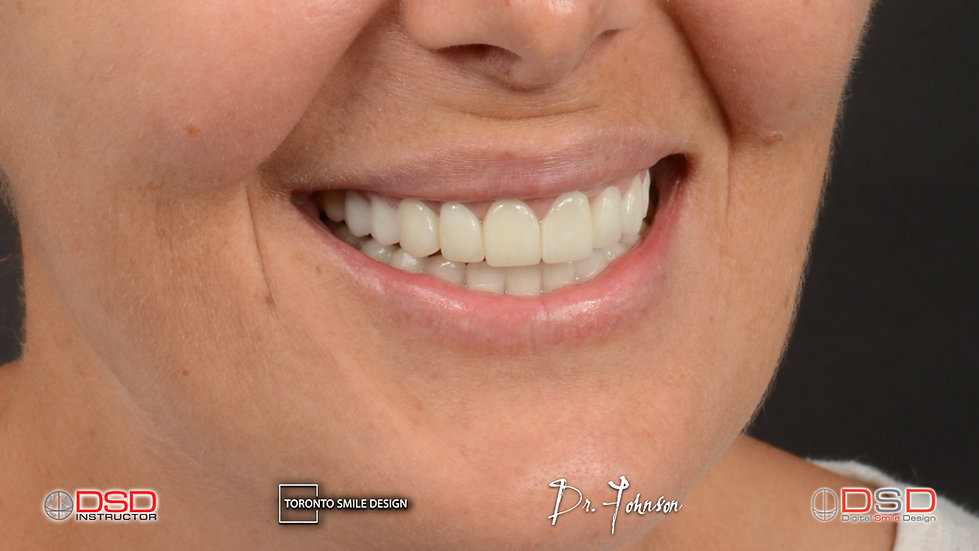Cosmetic Dentist Smile Makeover.jpeg