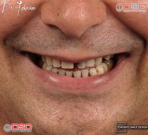 Toronto Dental Implants - Yorkville Oral Surgeon_edited.jpg