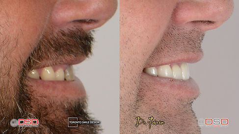 how to get rid of yellow teeth naturally