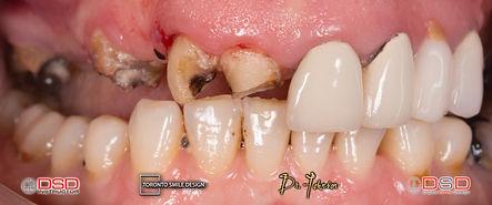 Toronto Dentist - Full Mouth Rehabilitation.jpeg