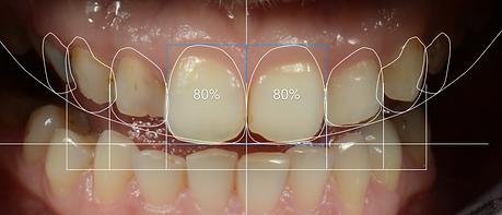 kırık dişlerde gülüş tasarımı, dijital gülüş tasarımı ön görünüş