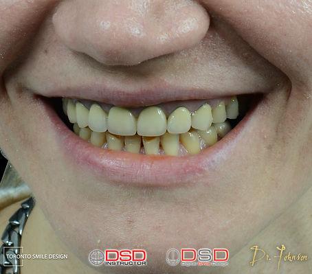 Dentist Toronto - Smile Design Case - Be