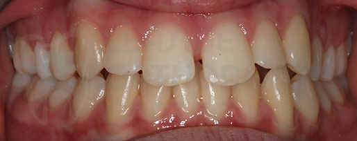 intraoral picture of the initial situation of the patient before the orthodontic treatment - by toronto orthodontist Dr.Emel Arat