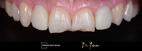 Dental Implants near me - how much are d
