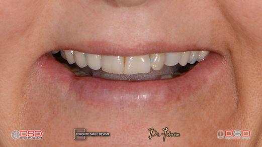 Cosmetic Dentistry Toronto - Porcelain Crowns Toronto.jpeg