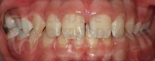 Orthodontic Case No 7 - 14th of October 2019 - Polydiastema case resolved by Toronto Orthodontist Dr. Emel Arat Before The treatment Intraoral Picture of the patients smile