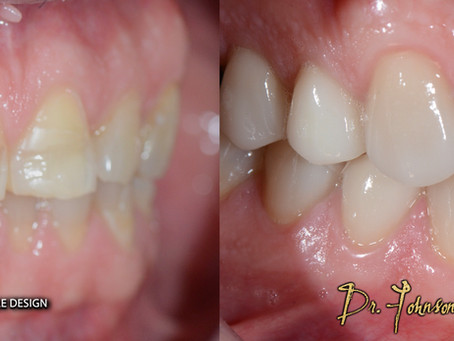 Porcelain Veneers Toronto – Aiming for The Perfect Smile