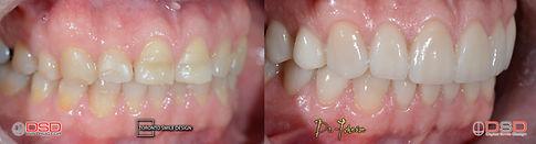 Porcelain Veneers - Best Cosmetic Dentist Ontario.jpeg