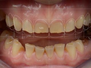 Gülüş tasarımı prosedürünü bir de hastanın ağzından dinleyin...