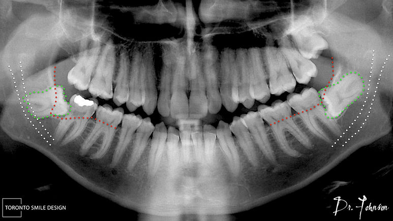 impacted wisdom teeth removal nerve damage - nerve damage after wisdom teeth removal.jpeg