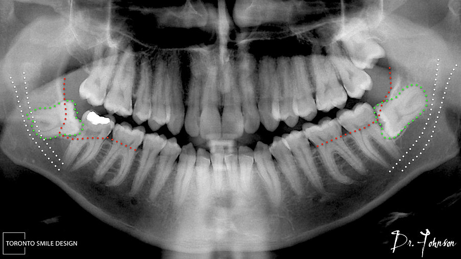 impacted wisdom teeth removal nerve dama