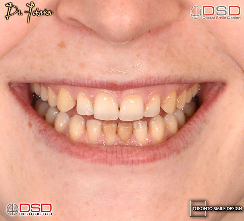 Best Cosmetic Dentist's before and after veneer treatment