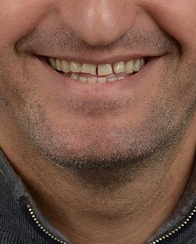 Digital Smile Design Smile Frame