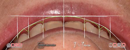 Dentist Toronto - Smile Makeover.jpeg