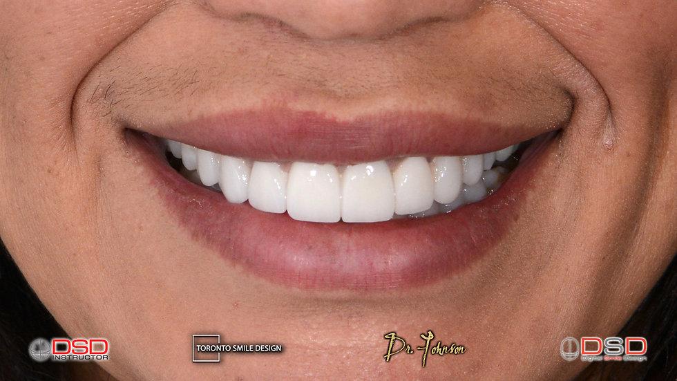 Best Cosmetic Dentist Toronto - Smile Tr