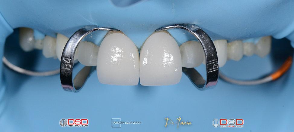Insertion of Veneers - Toronto Dentist -