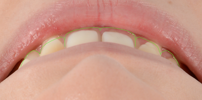 Toronto Dentist - Dr. Johnson - Oral Surgery Toronto