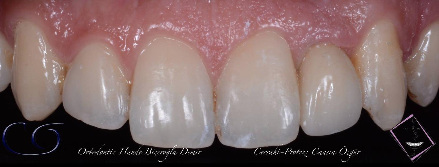ön diş implant tedavisi