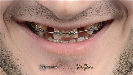 Dental Implant Cost Toronto - Dental Imp