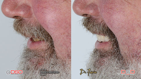 Smile Makeover Case of a Worn-Out dentition with porcelain crowns and dental bridges