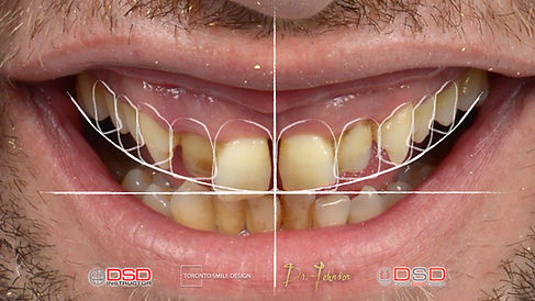 Digital Smile Design Toronto - Smile Mak