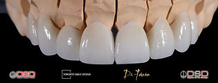 midline shift teeth treatment - diastema
