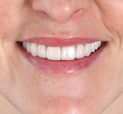 toronto smile makeover - smile design to