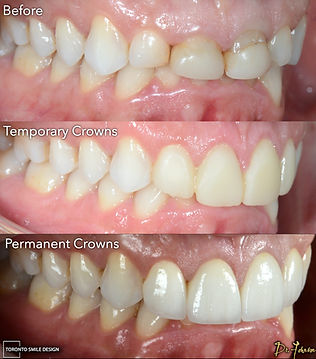 Porcelain Crowns - Cosmetic Dentistry -