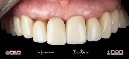 how long do dental implants last.jpeg