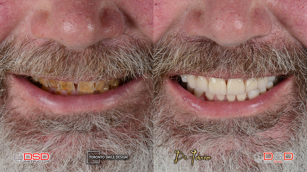 Dental Crown - Before and After Smile Design Cases