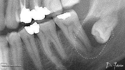 how long is wisdom teeth recovery - wisd