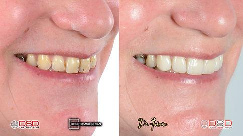 Cosmetic Dentistry Toronto - Porcelain V