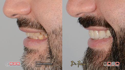 Toronto Porcelain Veneer  - Cosmetic Dentist Toronto.jpeg