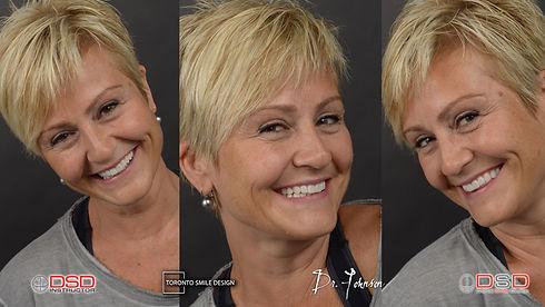 Smile Rehabilitation - Toronto Cosmetic Dentist.jpeg