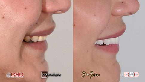 Toronto Smile Design - Smile Transformat
