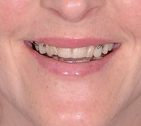 New Digital Smile Design Case!
