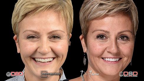 Smile Design - Digital Smile Design - Toronto Dentist.jpeg