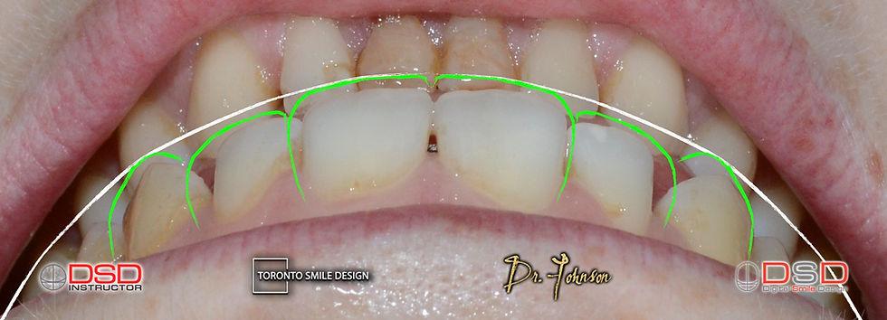 Best cosmetic dental Clinic Toronto - Digital Smile Design treatment planning