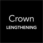Crown Lengthening Toronto - Oral Surgery Toronto