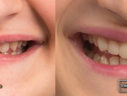 Teeth Bonding: What to Expect If You Have Your Teeth Bonded