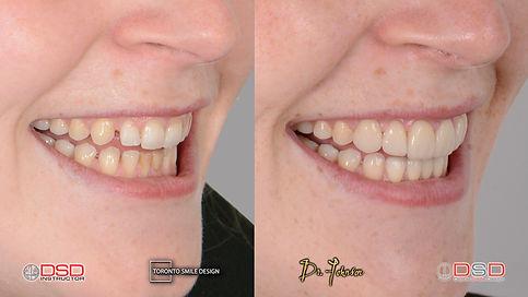 best dental veneers toronto - top cosmetic dentist of toronto before and after