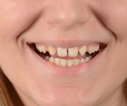 Toronto Dentist - Smile Design Toronto - Smile Make Over Before