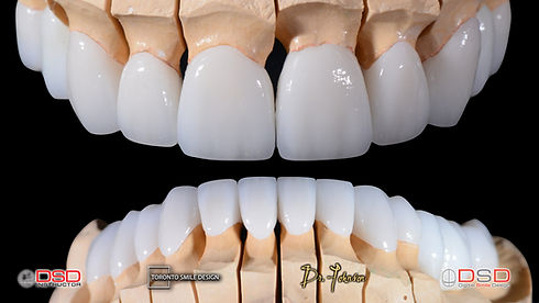 Toronto Cosmetic Dentist Case 9 - Final