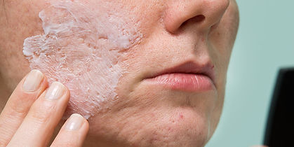 portland-acne-scar-treatments.jpg