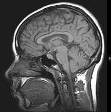 brain%202_edited_edited.jpg